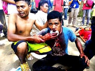 kidapawan-massacre-injured-1024x768